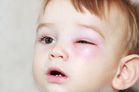Kind von Insekt gestochen