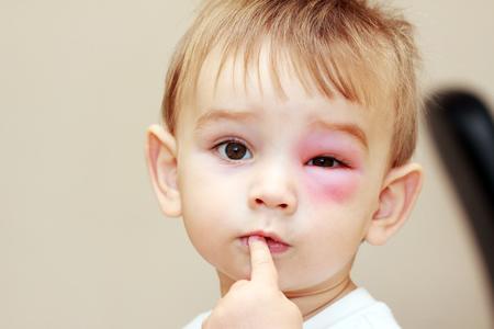 Kind mit geschwollenem Auge durch Insektenstich